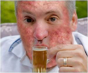 alcohol-skin-diseases